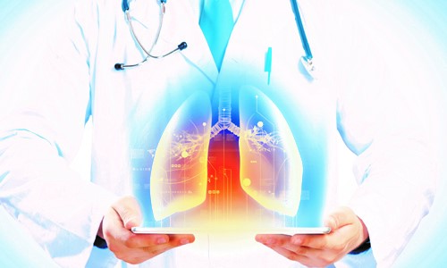 Doctor Showing Graphic of Lungs